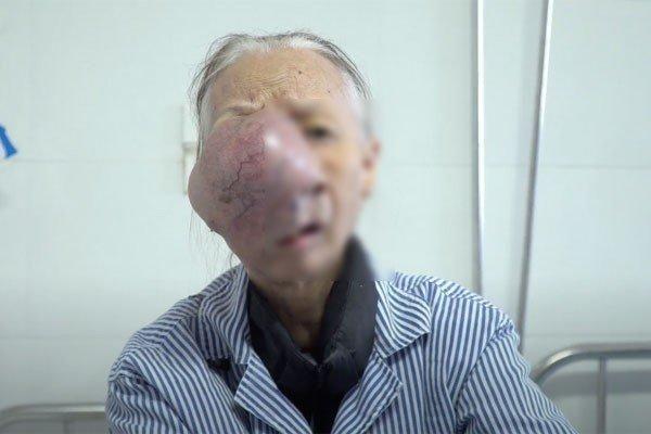 Cụ bà nghèo với khối u trên mặt to như trái bưởi