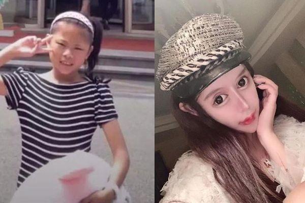 Rich kid Trung Quốc nghiện phẫu thuật thẩm mỹ, khuôn mặt như mặt rắn