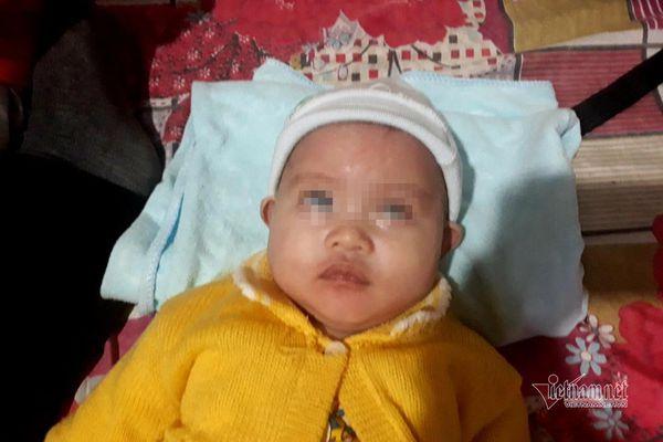 Không có tiền phẫu thuật, bé gái 7 tháng tuổi có nguy cơ mù vĩnh viễn