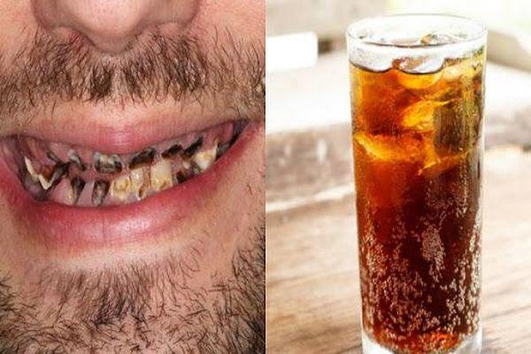 Hàm răng chàng trai thối rữa do nghiện loại đồ uống quen thuộc
