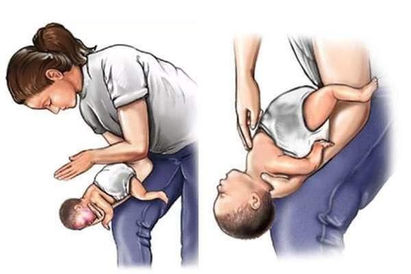 Xử lý thế nào khi trẻ tắc dị vật đường thở?