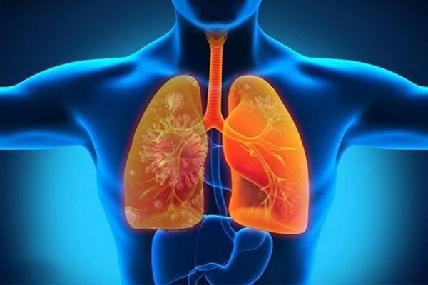 Triệu chứng bệnh bụi phổi