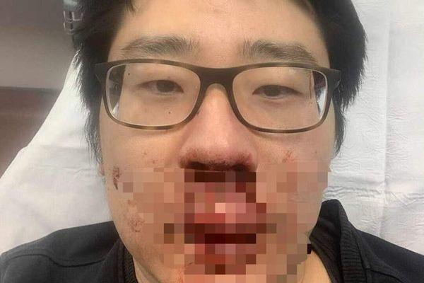 Giảng viên Trung Quốc bị đánh chảy máu mũi ở Anh