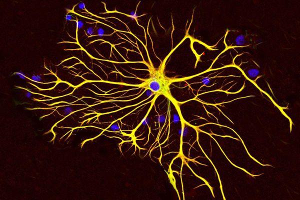 Khoa học phát hiện gen 'zombie' trong não người mới qua đời