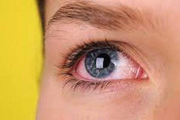 Bệnh Glôcôm: Nguyên nhân gây mù lòa nguy hiểm