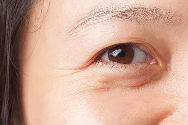 4 cách xử lý bọng mắt nhanh nhất