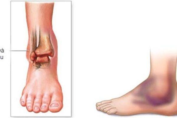 Nhìn xuống bàn chân thấy 3 điểm đầu tiên sức khỏe tốt sống thọ, 2 điểm sau cùng nhiều bệnh tật, dễ đoản mệnh