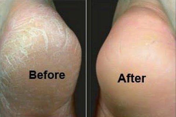 2 cách trị nứt gót chân ai cũng làm được