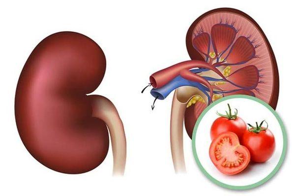 Nếu gặp 6 dấu hiệu này sau khi ăn cà chua thì bạn nên dừng lại