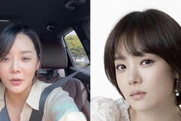 Chae Rim lộ gương mặt cứng đơ, còn đâu nữ thần ngọt ngào khiến fan một thời thương nhớ