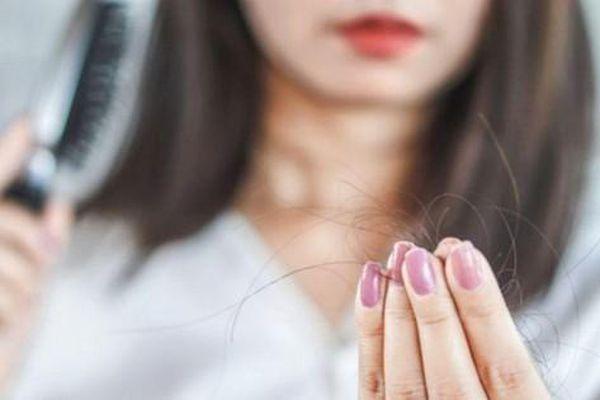 Người phụ nữ 'bỗng dưng' hói nửa đầu vì bệnh cực hiếm