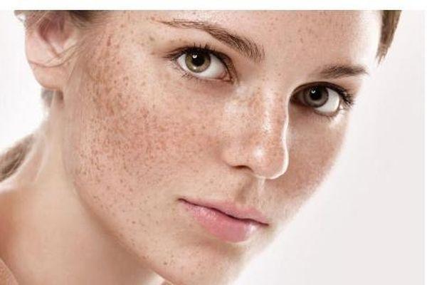Trị nám thể nặng, dưỡng trắng ngăn chặn lão hóa với H'era White