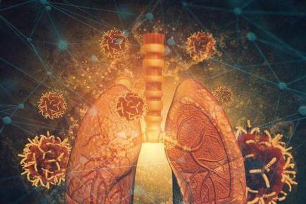 Tiết lộ lý do SARS-CoV-2 khác biệt và gây chết người