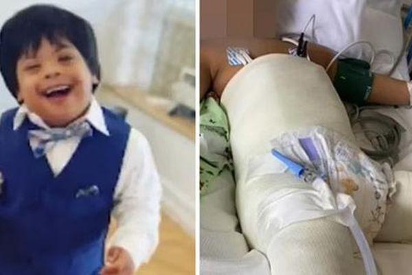 Bé 3 tuổi bị Down sống sót sau cú ngã từ tầng 5