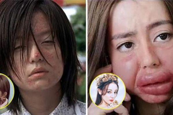 Mỹ nhân Hoa ngữ bị 'hủy dung' trong phim: Triệu Vy xấu xí, Địch Lệ Nhiệt Ba biến dạng