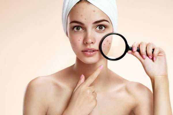 5 lý do khiến da bạn bị mụn quanh năm