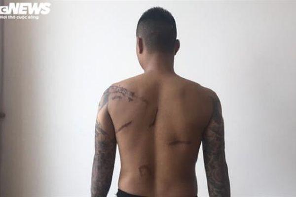Sắp xét xử nhóm côn đồ Thái Bình truy sát nam thanh niên sau 8 năm 'chìm xuồng'