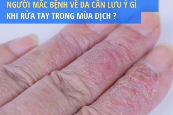 Người mắc bệnh về da cần lưu ý gì khi rửa tay trong mùa dịch?