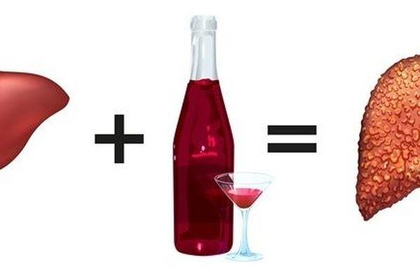Gia tăng tổn thương gan do uống nhiều rượu trong đại dịch COVID-19