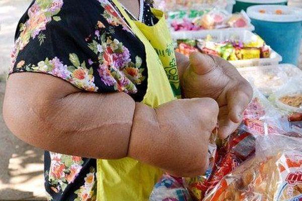 Mắc bệnh siêu hiếm, người phụ nữ có đôi tay to như 'thủy thủ Popeye'