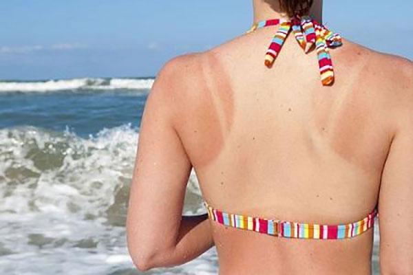 4 vấn đề về da thường gặp trong mùa hè