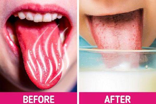 Lưỡi bị bỏng rát khi ăn đồ quá nóng cứ làm theo cách này là khỏi ngay tức khắc