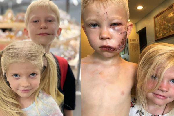 Cậu bé bình phục sau khi cứu em gái khỏi chó dữ