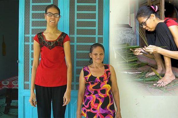 Cuộc sống khốn khó 20.000 đồng/ngày của cô gái miền Tây cao tới 2 m