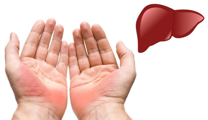 7 dấu hiệu xuất hiện trên bàn tay chứng tỏ sức khỏe đang có vấn đề nghiêm  trọng - Báo Chất Lượng Việt Nam