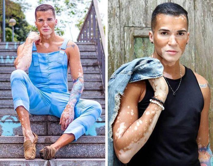 Nam người mẫu tự tin khoe khuôn mặt mắc bệnh bạch biến sau 10 năm che giấu