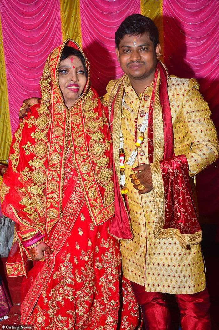Cô gái mù lòa, biến dạng mặt vì bị tạt axit rạng rỡ trong ngày cưới
