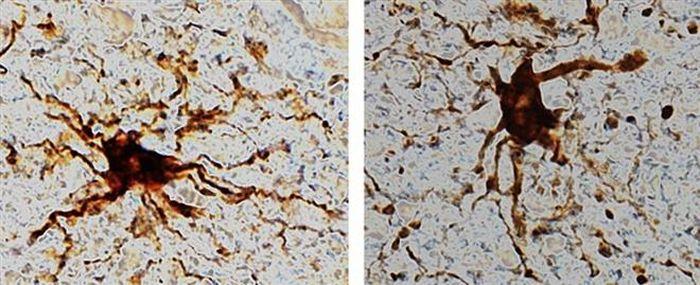 Tìm thấy 'gen thây ma' trong não người chết