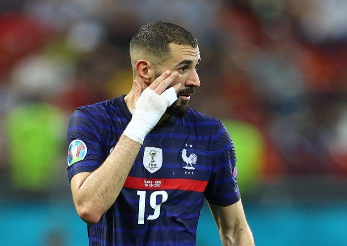 Sự trở lại của Benzema khiến tuyển Pháp phải trả giá