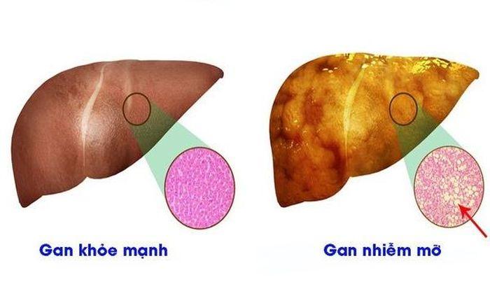 4 dấu hiệu nhận biết tổn thương gan nhiễm mỡ
